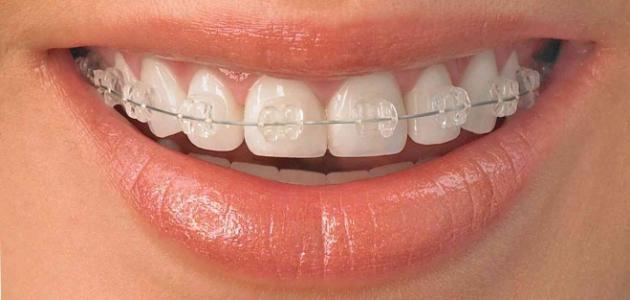 عيوب التقويم الشفاف للأسنان
