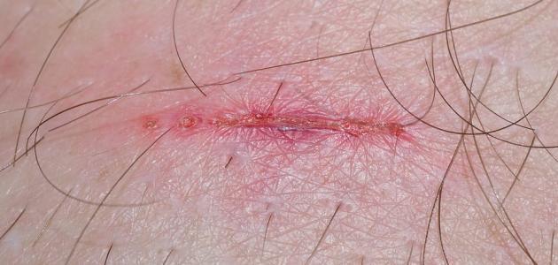 علاج آثار الجروح في الجسم