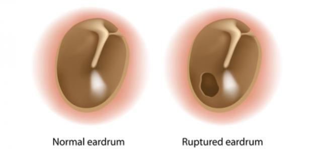 علامات ثقب طبلة الأذن