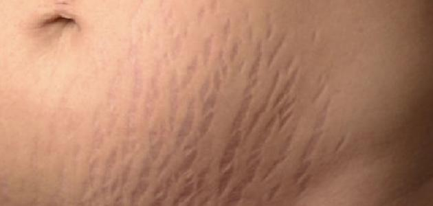 علامات تمدد الجلد للحامل