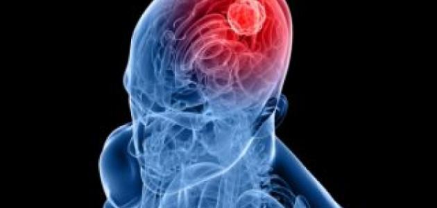ما هو نزيف الدماغ