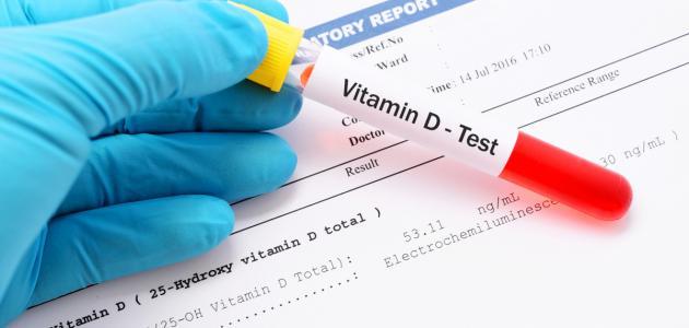 كم النسبة الطبيعية لفيتامين د في الجسم
