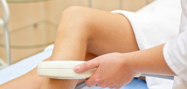 تأثير إزالة الشعر بالليزر على الحامل