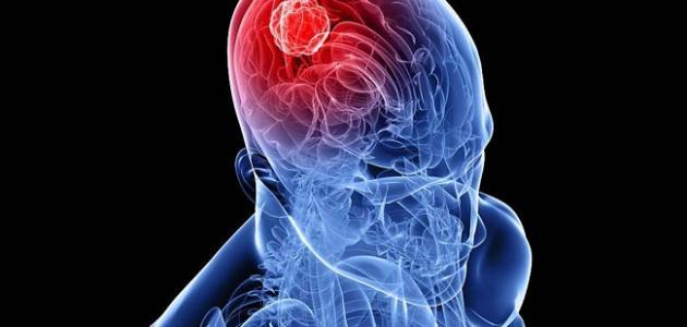 ما هي أعراض ورم الدماغ