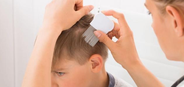 أسباب ضعف الشعر عند الأطفال