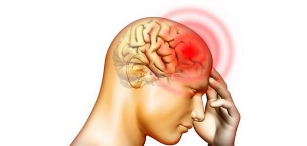 أعراض بداية جلطة الدماغ