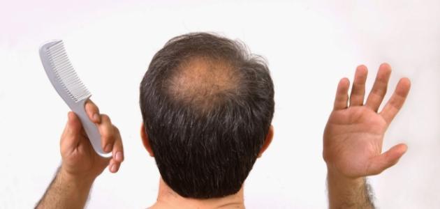 أسباب ظهور فراغات في فروة الرأس