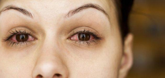 أمراض ضغط العين