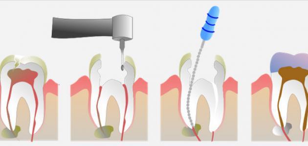 آثار جانبية لسحب عصب الأسنان