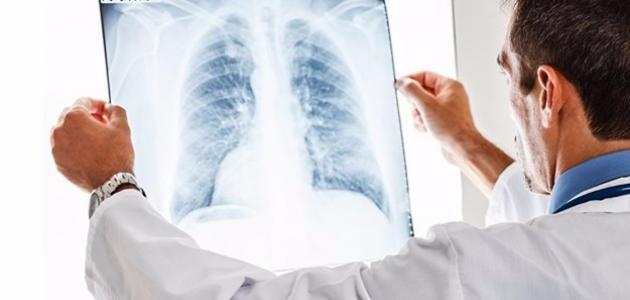 أعراض الثقب في الرئة