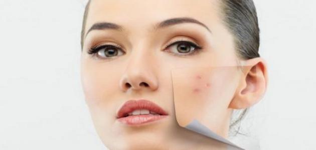 تقشير الوجه لإزالة آثار الحبوب