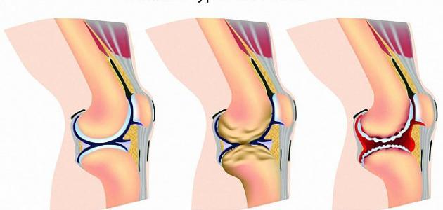 ما هي خشونة الركبة