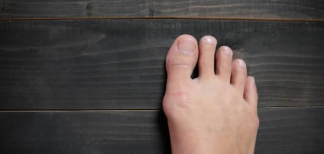 أسباب ظهور عظمة القدم