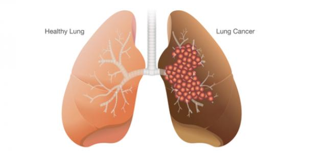 مراحل تطور مرض سرطان الرئة