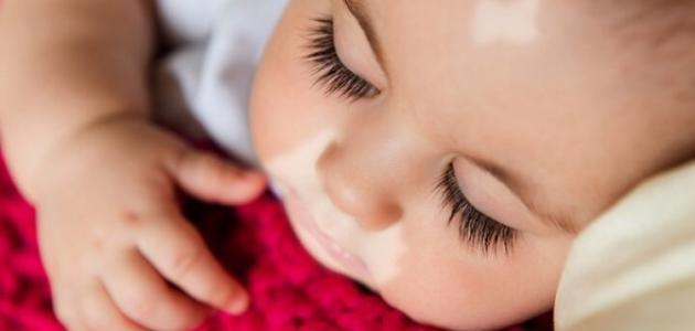 نقص صبغة الجلد عند الأطفال
