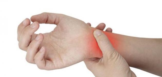 التهاب المفاصل الروماتويدي - فيديو