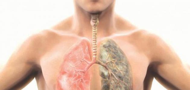 طرق الوقاية من سرطان الرئة