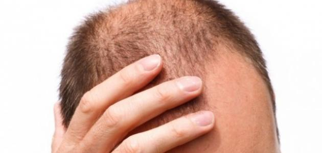 طرق نمو الشعر بسرعة للرجال