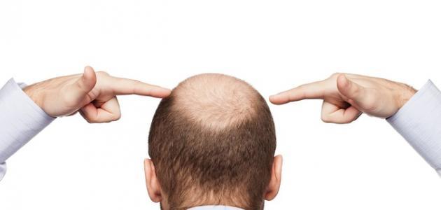 طرق معالجة تساقط الشعر عند الرجال