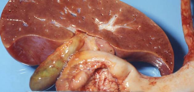 ما هي دهون الكبد