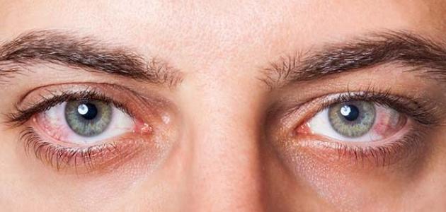 مرض جفاف العين - فيديو