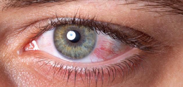 مرض ضغط العين - فيديو