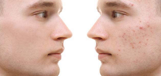طرق إزالة الحبوب الدهنية من الوجه