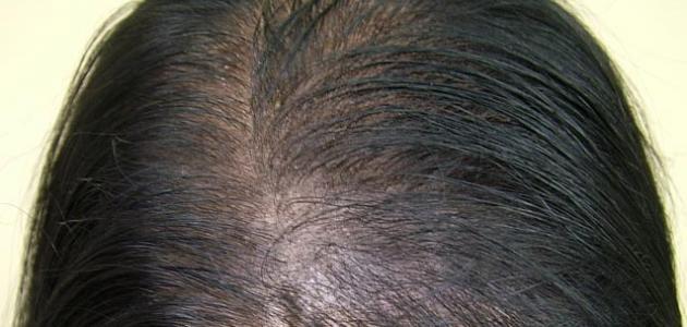 03f552b92330c طريقة إخفاء فراغات الشعر - موضوع