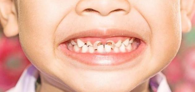 تسوس الأسنان - فيديو