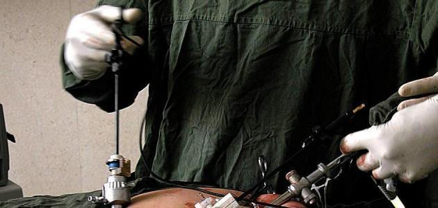 جراحة المنظار - فيديو