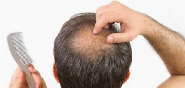 طرق للتخلص من تساقط الشعر