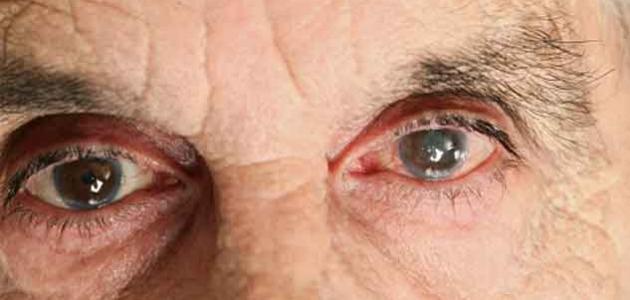 علاج الماء الأبيض في العين - فيديو