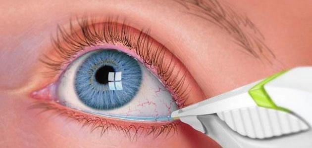 أسباب وعلاج مرض جفاف العين - فيديو