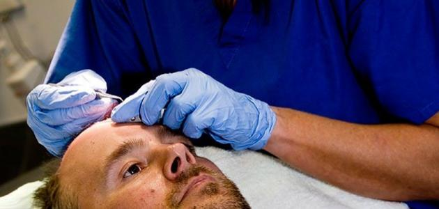 طريقة النوم بعد عملية زراعة الشعر