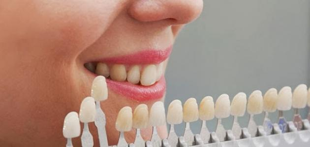 أنواع تبييض الأسنان - فيديو