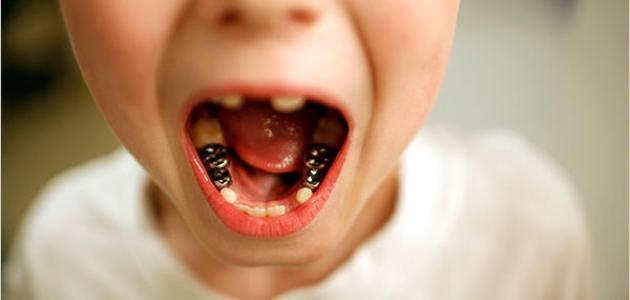 تآكل الأسنان - فيديو