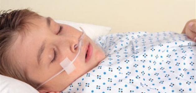 ضعف التنفس أثناء النوم