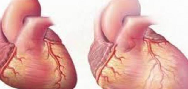 ماذا يعني تضخم القلب