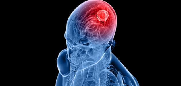 تشخيص الأورام السحائية الدماغية - فيديو