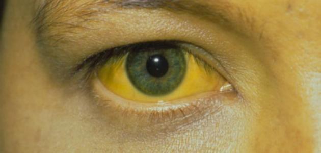 ما هي أسباب اصفرار العين - فيديو