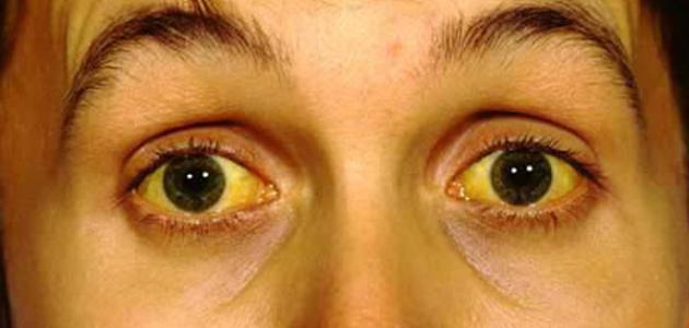 ما هو اصفرار العين - فيديو