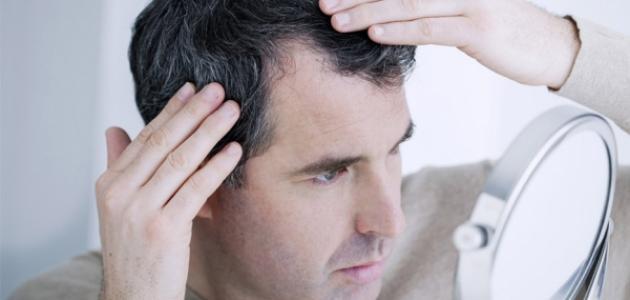ضعف الشعر من الأمام