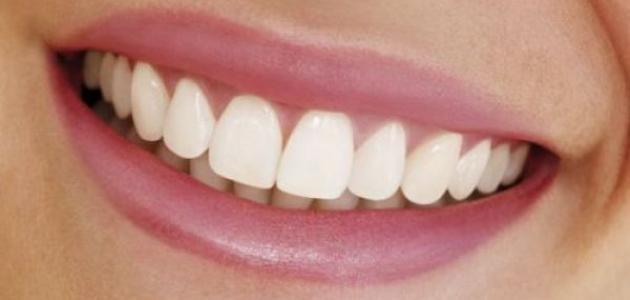 ما هو خراج الأسنان - فيديو