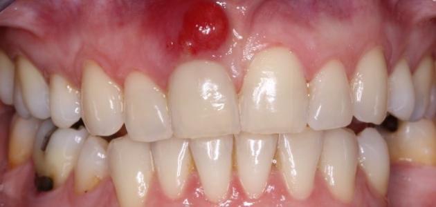 ما هي أعراض خراج الأسنان - فيديو