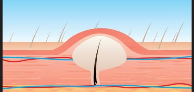 ما هو علاج نمو الشعر تحت الجلد - فيديو