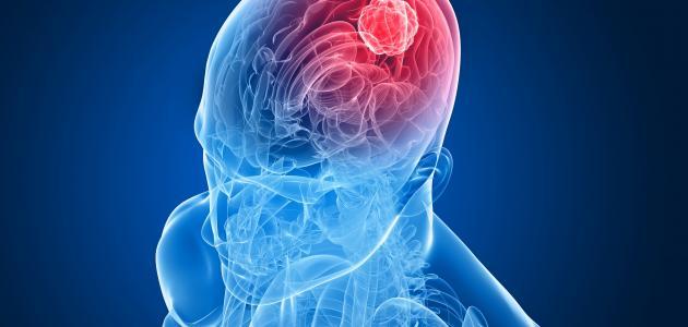 مراحل سرطان الدماغ