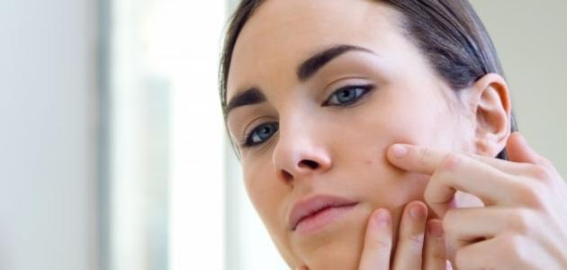 سبب ظهور الحبوب في الوجه قبل الدورة