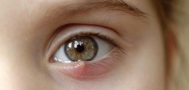 طريقة علاج جنجل العين