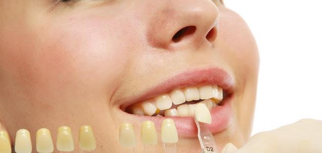 طرق تبيض الاسنان