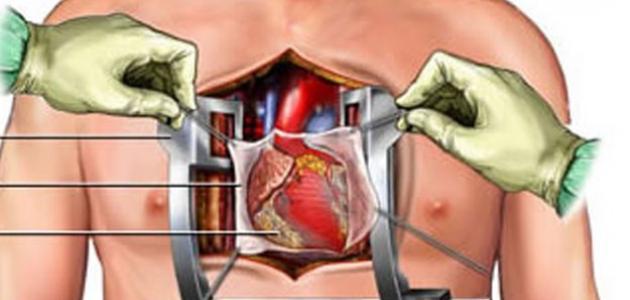 ما هي عملية القلب المفتوح موضوع